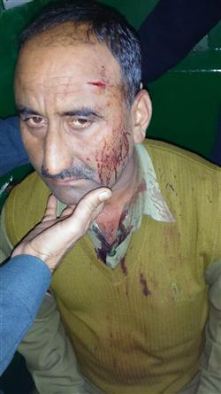 fight-between-tourist-and-hrtc-driver-old-isbt-shimla-1